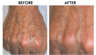 Laser Hair Removal Fort Lauderdale